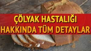 Aksaray'da Çölyak Hastaları dernekleşiyor