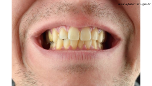 Dişlerdeki sararmalara dikkat